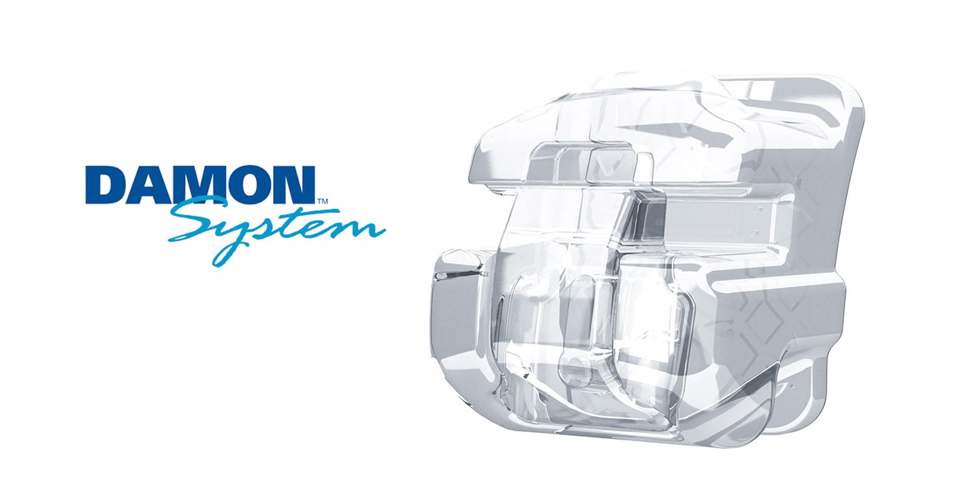 damon-system-orthodontics-1920x1280px
