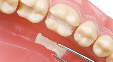 dental fillings and repairs - naco dentist - 3d dental center