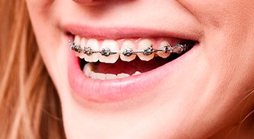 orthodontics-3ddental-naco-mexico