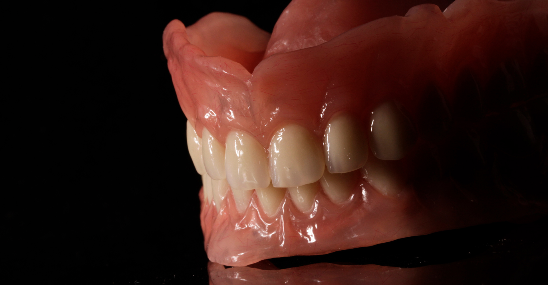 partial-denture-1920x1280