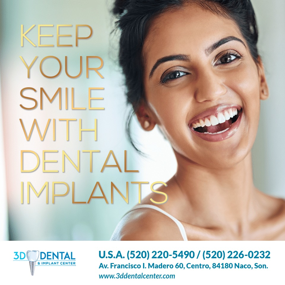 naco-dental-implants-3ddental-960x960px