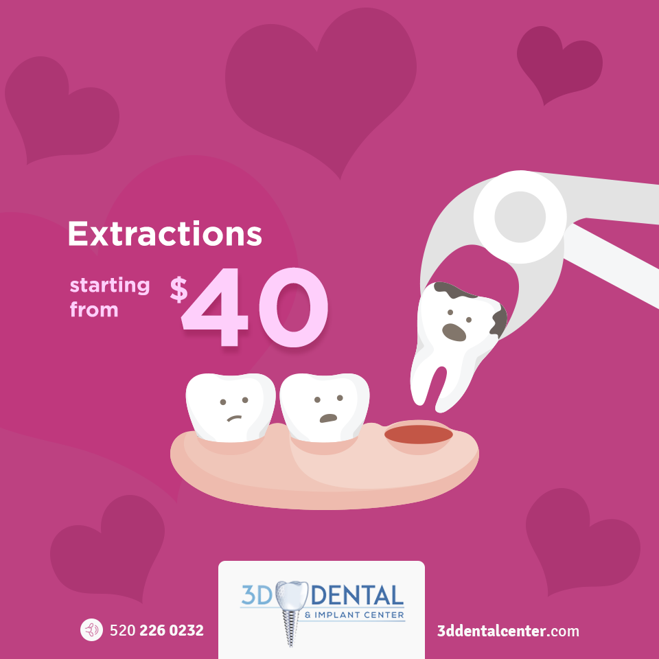 extractions-dental-clinic-naco-960x960px